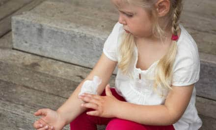 How to cope with Eczema living in Dubai