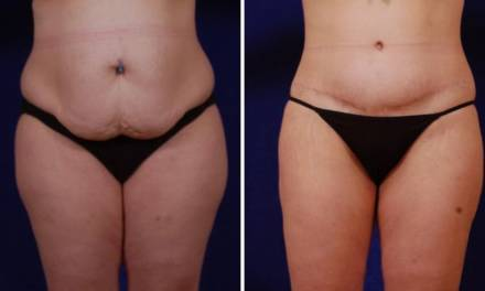 Everything You Need To Know About Having Plastic Surgery – The Tummy Tuck!